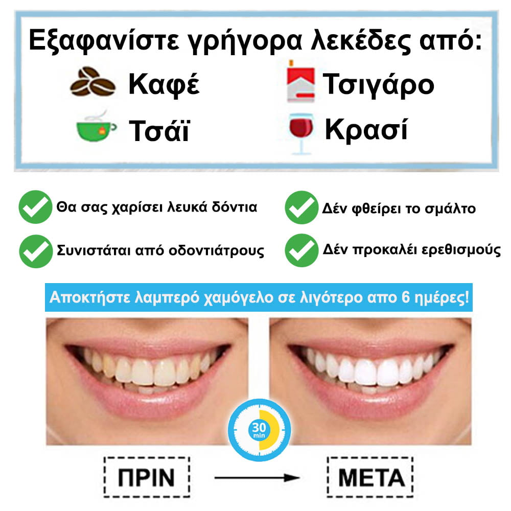 KIT Λεύκανσης Δοντιών - Λεύκανση Δοντιών Στο Σπίτι