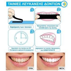 Ταινίες Λεύκανσης Δοντιών - Λευκαντικές Ταινίες Glory Smile