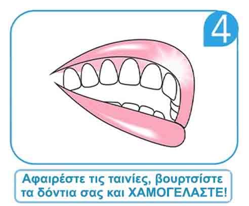 Strips Λεύκανσης Δοντιών