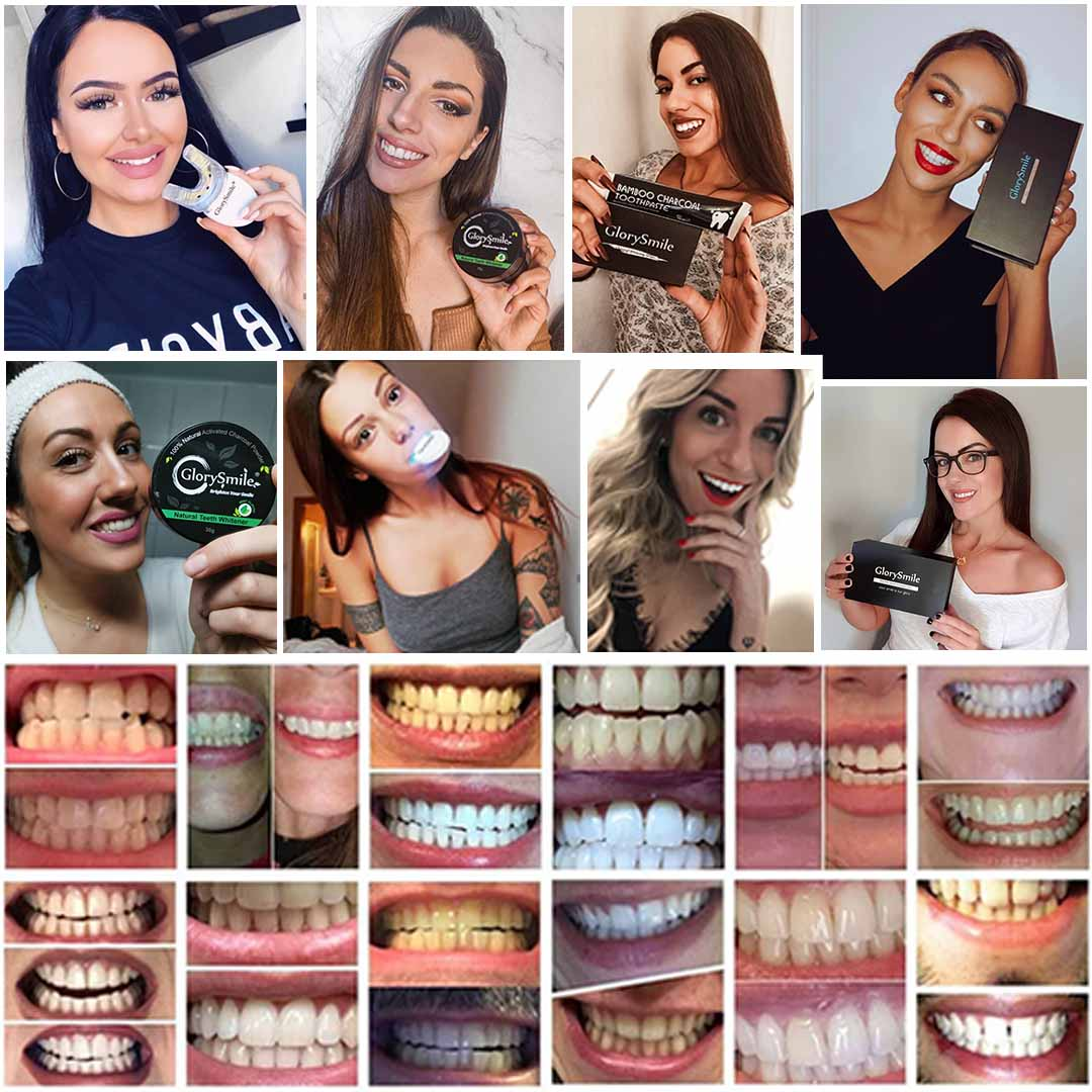 Προϊόντα Λεύκανσης Δοντιών Glorysmile Teeth Whitening