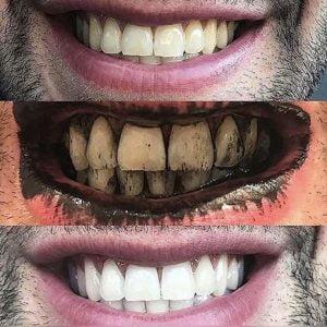 ΜΑΥΡΗ ΣΚΟΝΗ ΛΕΥΚΑΝΣΗΣ ΔΟΝΤΙΩΝ GLORY SMILE