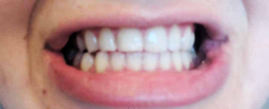 ΑΠΟΤΕΛΕΣΜΑΤΙΚΗ ΛΕΥΚΑΝΣΗ ΔΟΝΤΙΩΝ ΜΕ ΠΡΟΙΟΝΤΑ GLORY SMILE